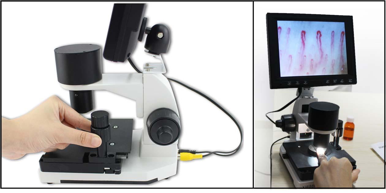 Kapillar-Mikroskop covid19 covid21
